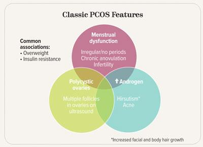 Classic-PCOS-Features.jpg